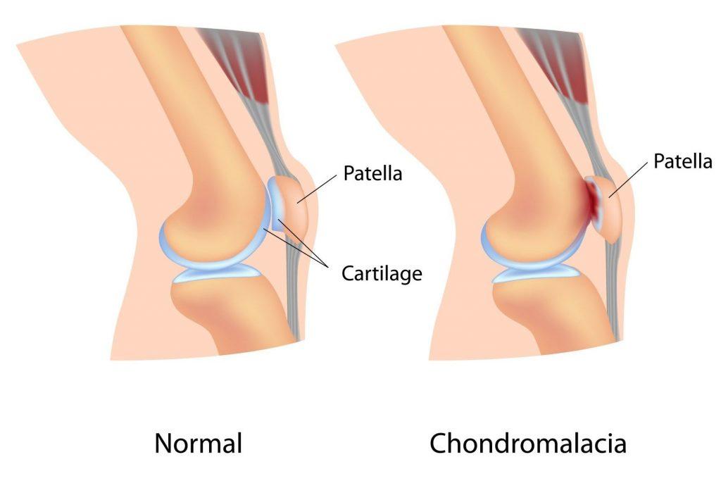 térdízületi fájdalom, ha teljesen hajlítva van