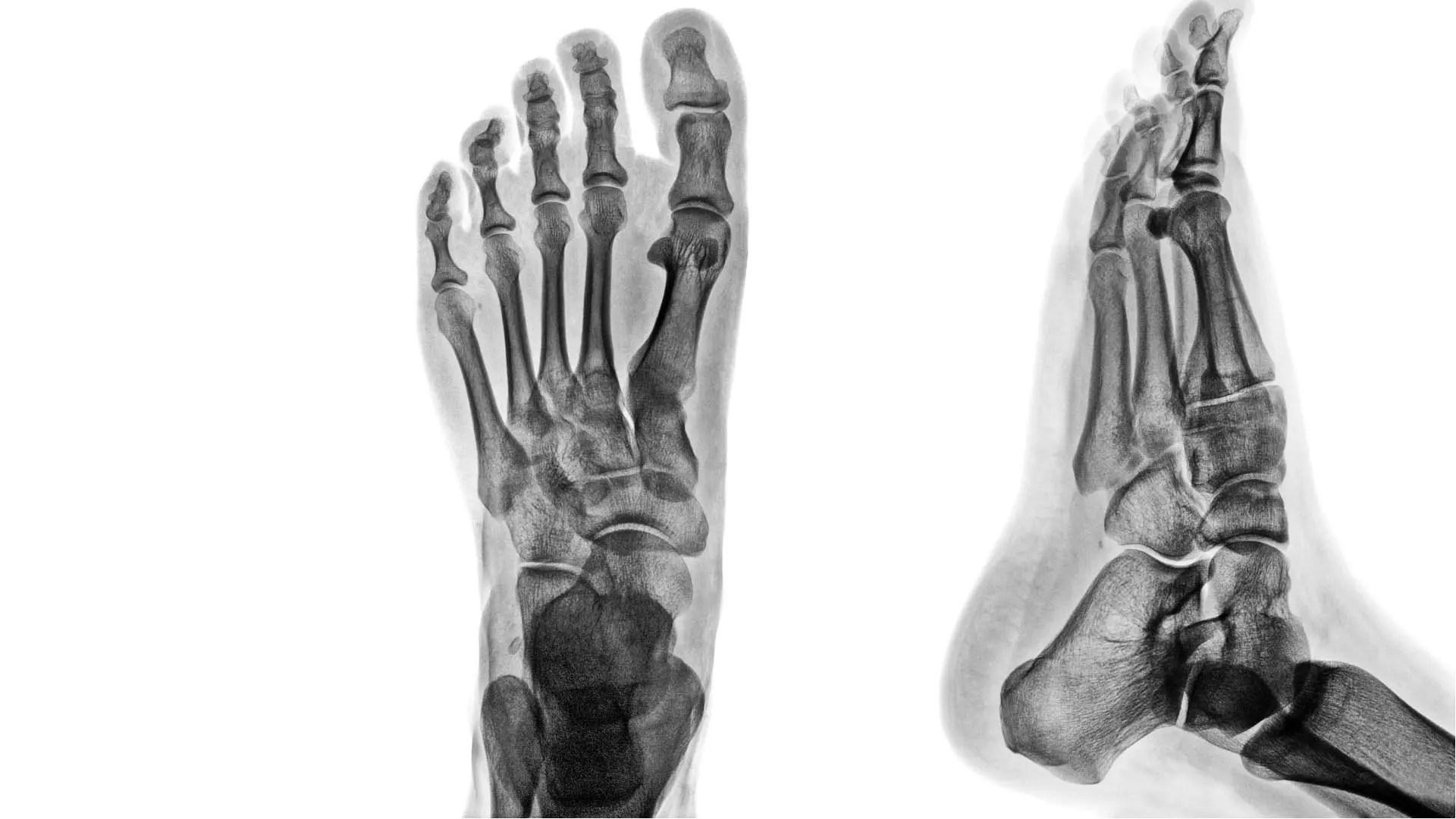 a lábak ízületi gyulladása és hogyan kezelhető fájdalom a csípőízületekben végzett injekció beadása után
