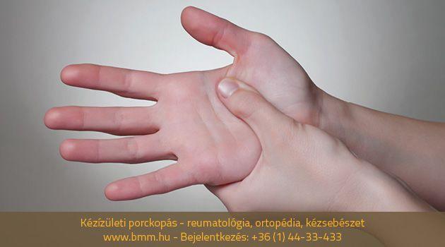milyen kenőcs segít a nyaki osteochondrozisban