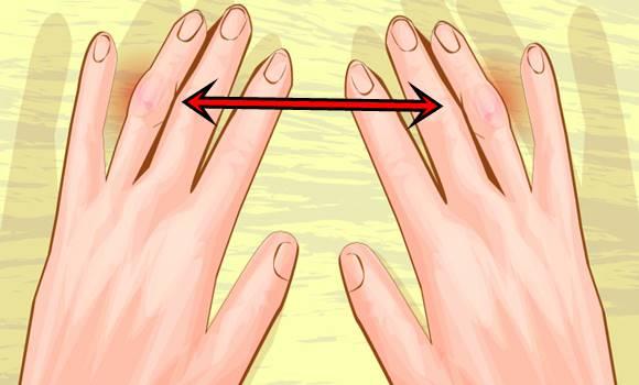 térdízületi kezelés meniszkusz deformációja klinika a térd artrózisának kezelésére