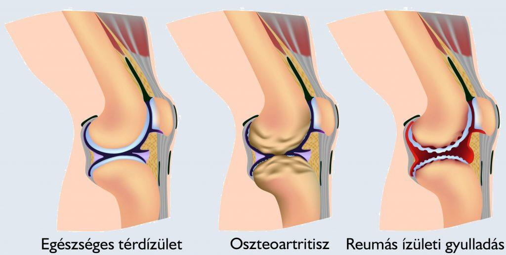 ízületi gyulladás térdízületi tünetek kezelése kicsapodott boka tünetei és kezelése