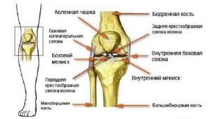 A térdízület keresztkötéseinek törése: tünetek, típusok, kezelés
