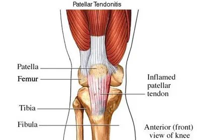 a térd ízületi zsákjának helyreállítása a láb ízületének gyulladása gyógyszeres kezelés