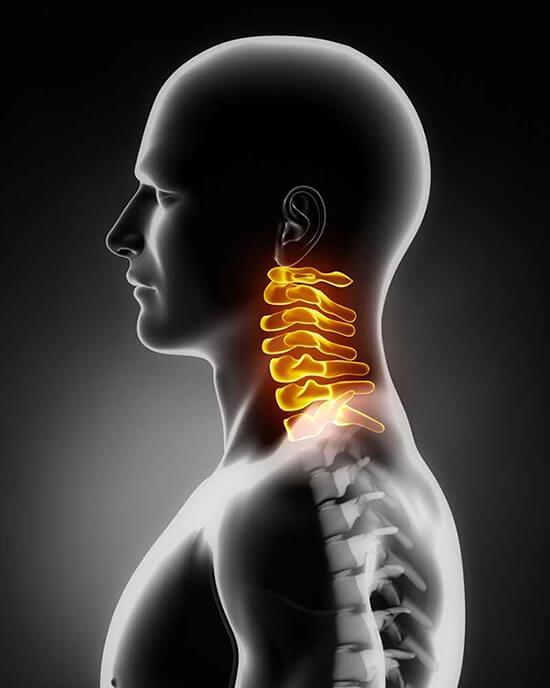 nyak és váll fájdalom