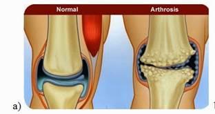 1. fokú boka-osteoarthrosis kezelése