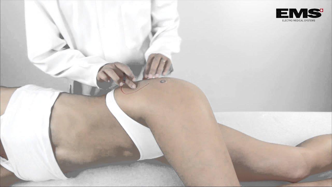 csípőgyulladás betegség tünetei aki hirudoterápiában részesült ízületi fájdalmak miatt
