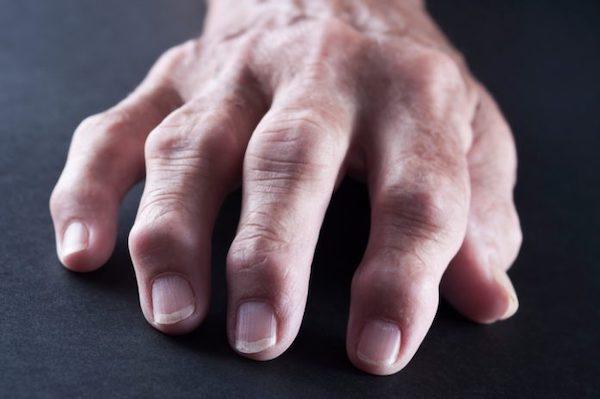 lábujjak rheumatoid arthritis, hogyan kell kezelni