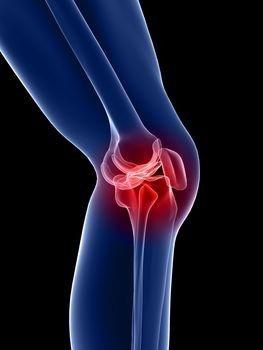 a bal térd artrózisa csontok és calcaneus artrosis kezelése
