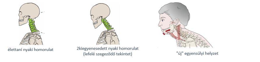 Ezek a legjobb házi módszerek nyakfájásra - HáziPatika