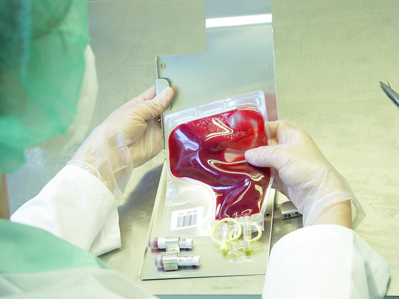 öblítés és a térd artrózisának kezelése az izületek hormonális készítményei
