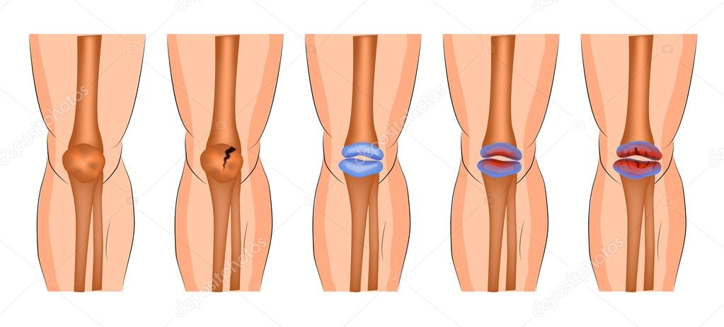 a térdízület kenőcsének artritisz