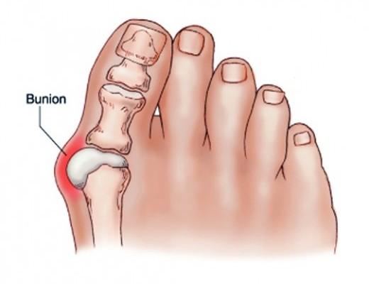 a lábujjak ízületei nagyon fájók