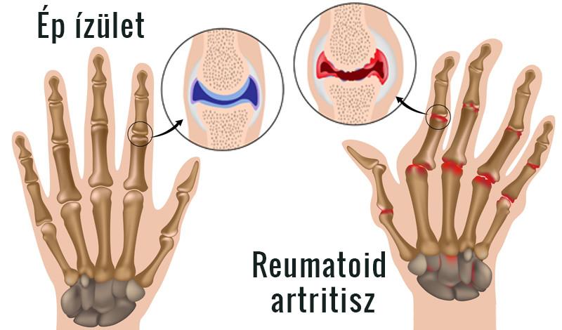 mi a különbség az artrózis és az ízületi gyulladás között kalanchoe ízületi fájdalmak esetén