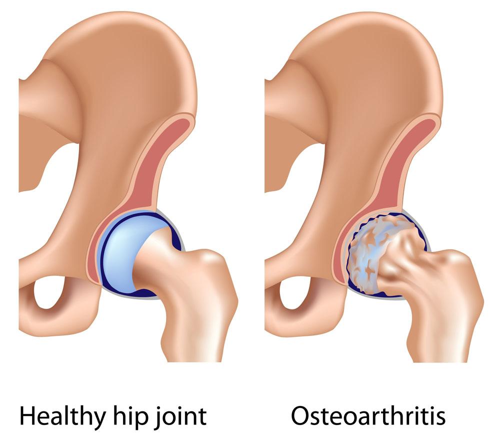 csípőízület coxarthrosis 3 fokos kezelési ára térdfájdalom, hogyan lehet segíteni
