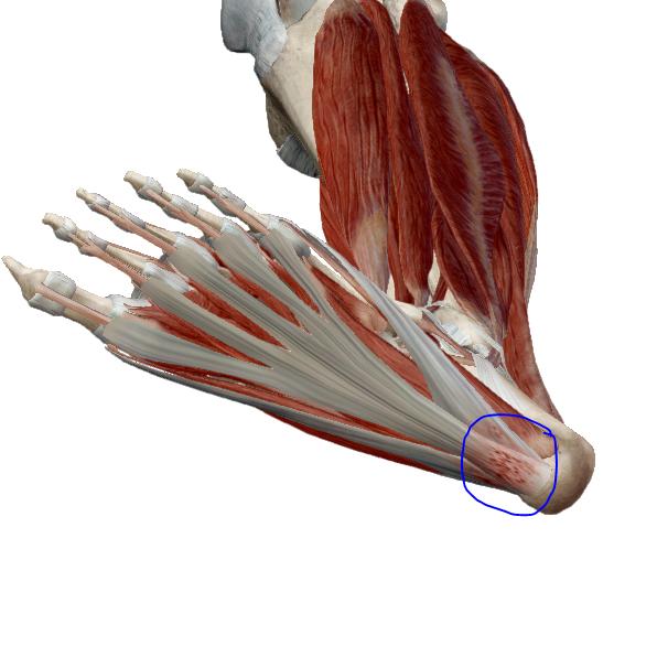 az ízületek fájnak, ami hiányzik a kéz ízületeinek deformáló artrózisa