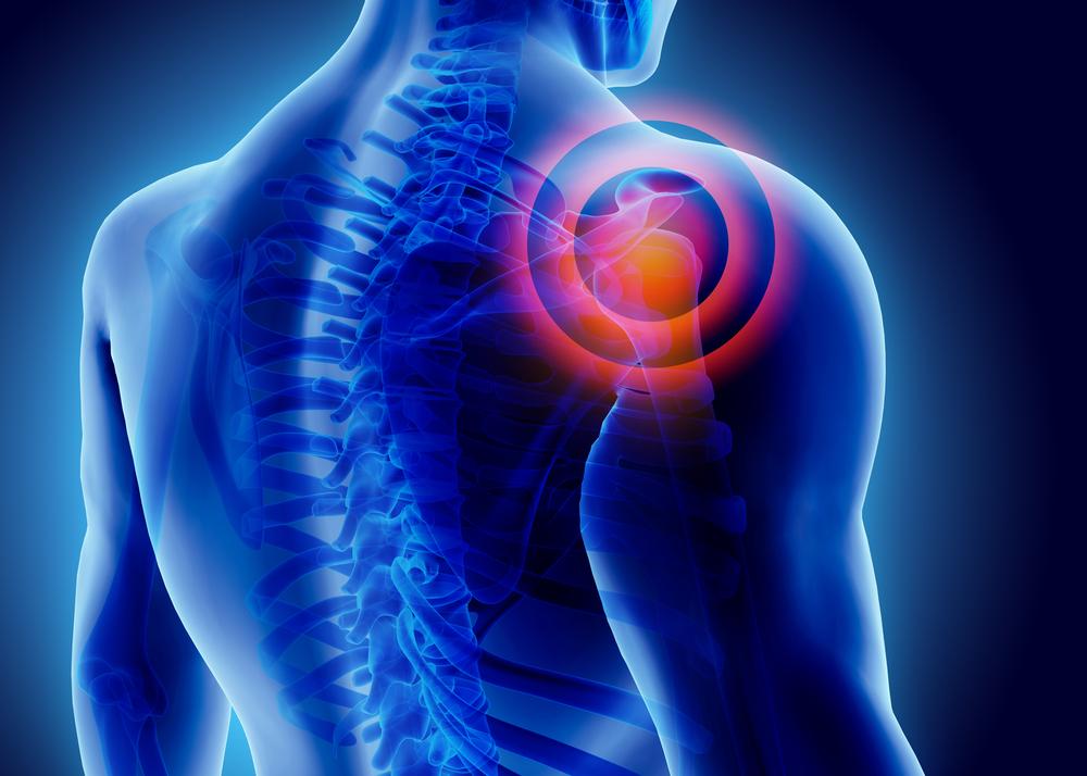 3 ok, amiért vállfájdalom alakulhat ki
