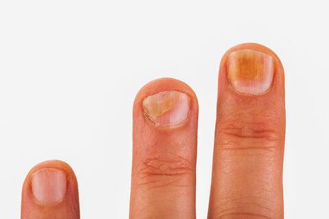 ujjgyulladás - Nyáktömlőgyulladás July