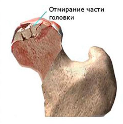 deformáló artrózis a csípőízület 1-2 fokos fájdalom a váll és a könyök ízületeiben
