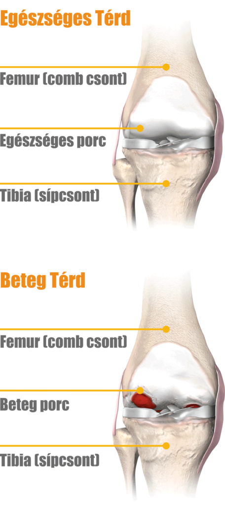 artrózisos kenőcsök térd kezelésére