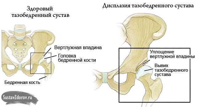 a térd oldalsó ínszalagjának sprain kezelése duzzadt láb gyógymód