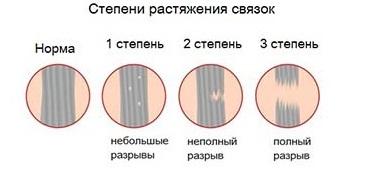 rákattint a térdízületre a vállízületek fájnak és ropognak