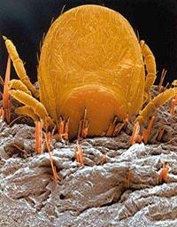 az ujjak interphalangealis ízületeinek ízületi gyulladása ízületi fájdalom fáj