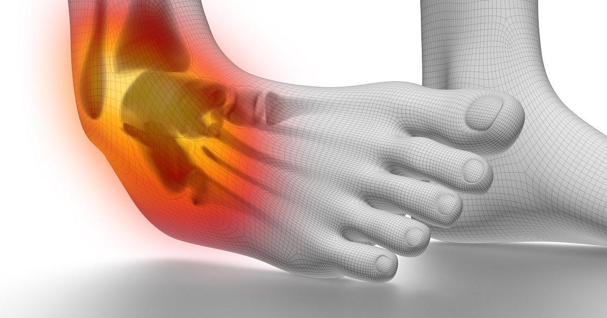 ízületi fájdalom traumatológia