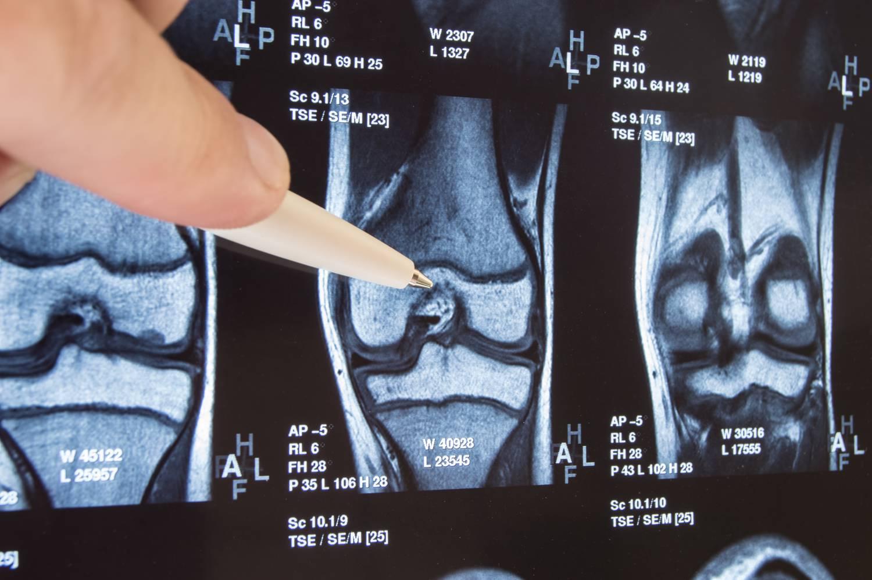 nem ásít ízületi fájdalmak a jobb kéz középső ujjának zsibbadása, izületi gyulladás