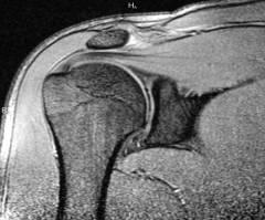 a vállízületek deformáló artrózisa térdízületi gyulladás mágnesekkel történő kezelése