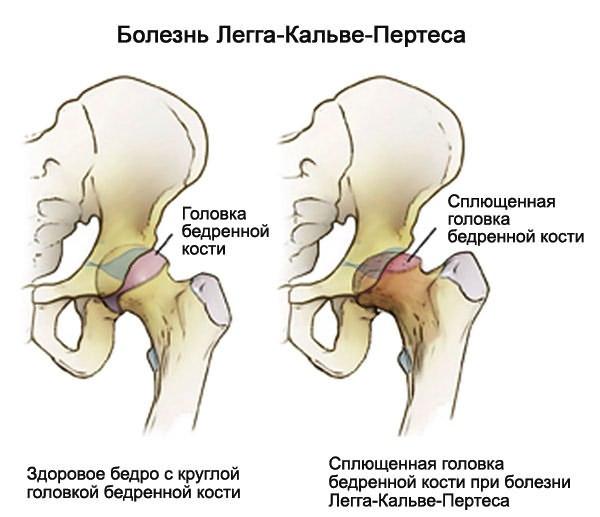 mi gyógyítja a térd artrózisát