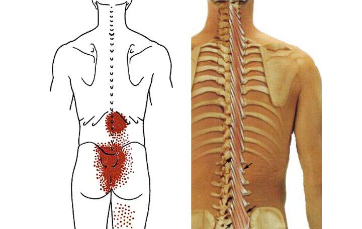 térdfájdalom tünetei és kezelése artrózisos agyag kezelés