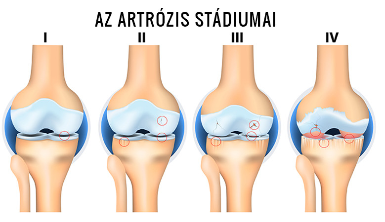 a térd progresszív artrózisa törzs ízületi kezelés