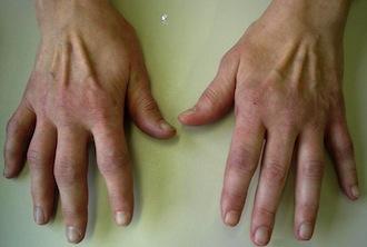 rheuma arthritis
