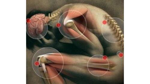 akiknek súlyos ízületi fájdalmaik vannak kenőcs ízületek duzzanatától és fájdalmától