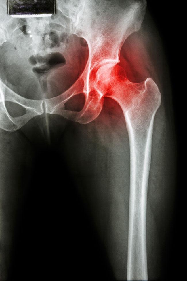 csípőízületi gyulladás tünetei