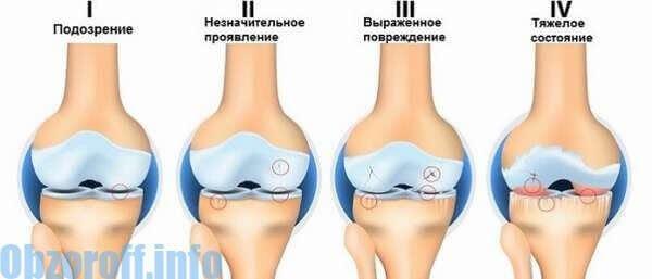 ízületi mobilitás helyreállítása artrózissal lábízületi 1-es és 2-fokos kezelés