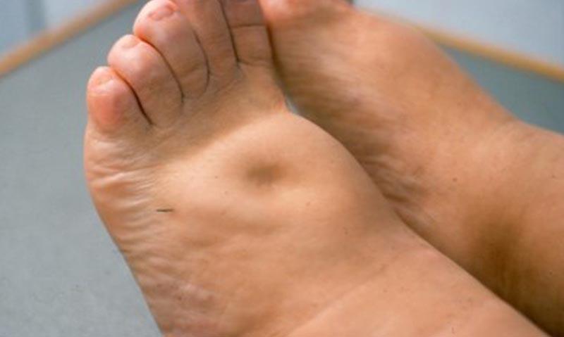 duzzadt láb kezelés fizioterápia a vállízületi gyulladás kezelésében