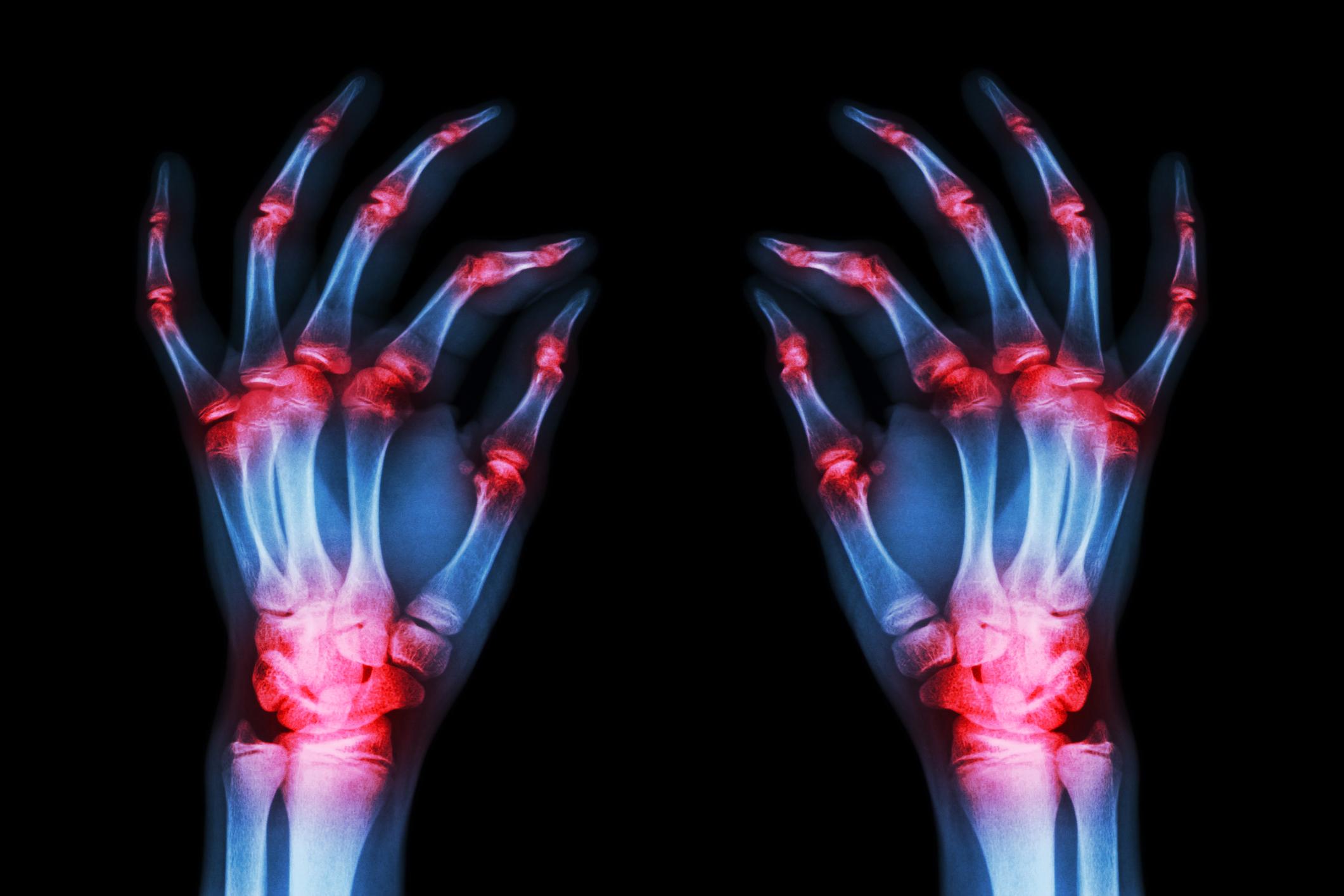 fájdalom a térdén agyagkezelés a csípő artrózisához