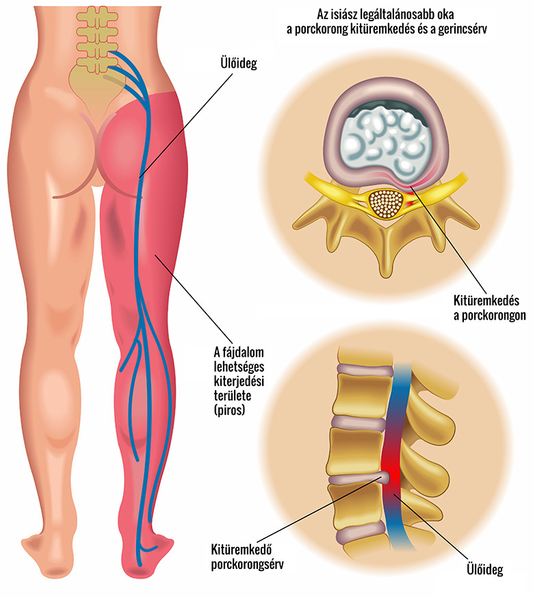 Súlyos ízületi fájdalom a hát alsó és porckorongsérv
