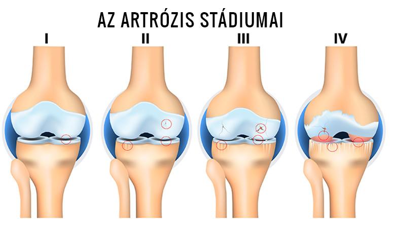 artrózis kezelése 2 3 fok