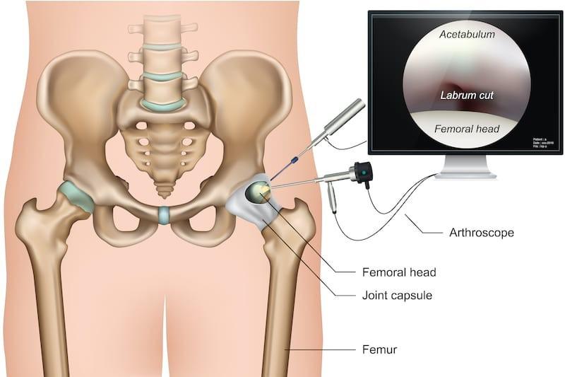 Vállartroszkópia