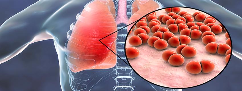 kondroitin glükózamin elit farmárral hogyan lehet azonosítani az ízületi betegség tüneteit