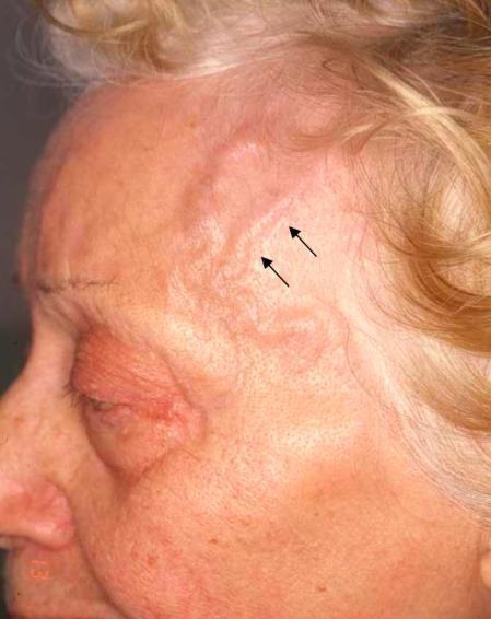 A szisztémás és a nem szisztémás vasculitises neuropathiák diagnózisa és kezelése