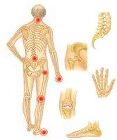 kezel egy neurológus artrózist ízületek fájdalomcsillapító gyógyszerei