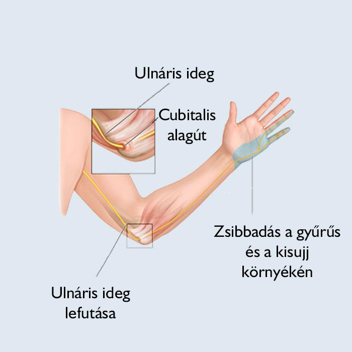 fájdalom a térdízületekben és a kezekben