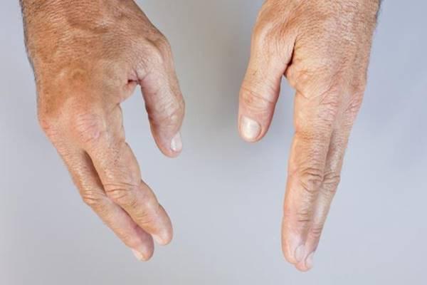 a térd artrózisának kezelése kompresszorokkal vitaminok glükózaminnal és kondroitinnal