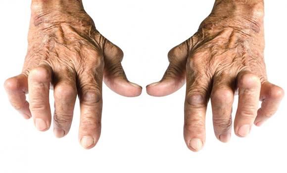 nyaki csontritkulás szoros ideggyógyszeres kezelés