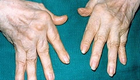 ha fáj az ujjak ízületeiben