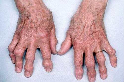 fájdalom a boka és az ujjak ízületeiben