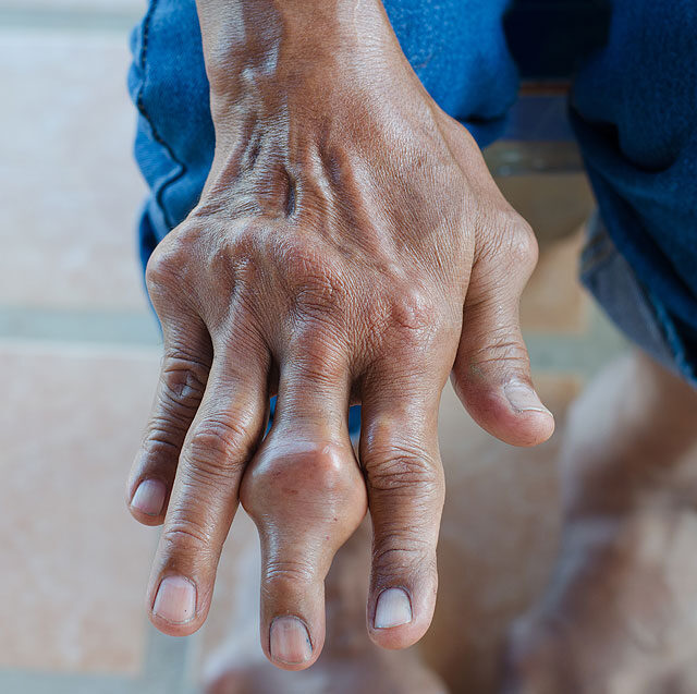 Az orvos válaszol: duzzadt, fájdalmas ujjak - fájdalomportádynarec.hu